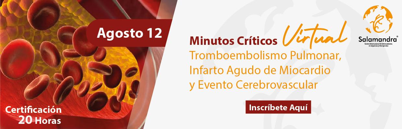 MINUTOSC-AG-12